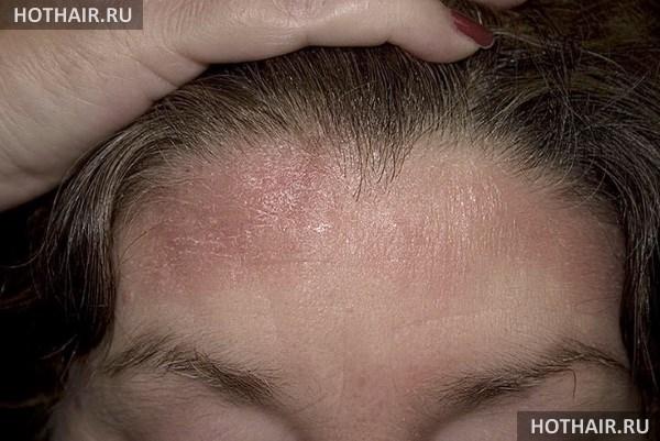 Себорея кожи головы лечение медикаментозное и профилактическое